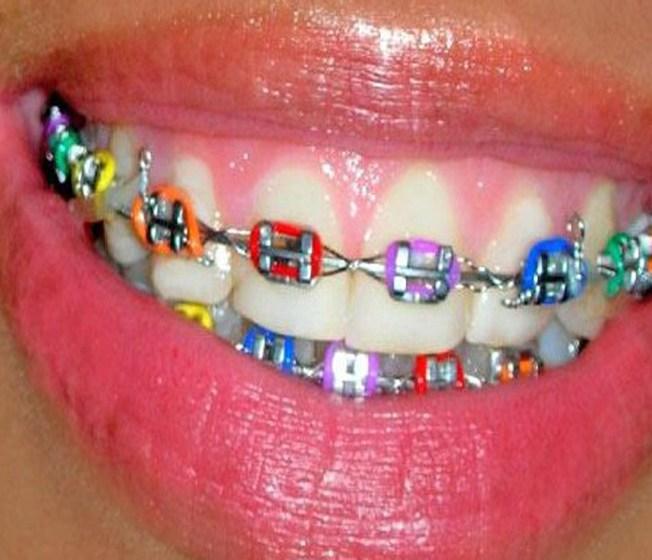 Coloured Braces