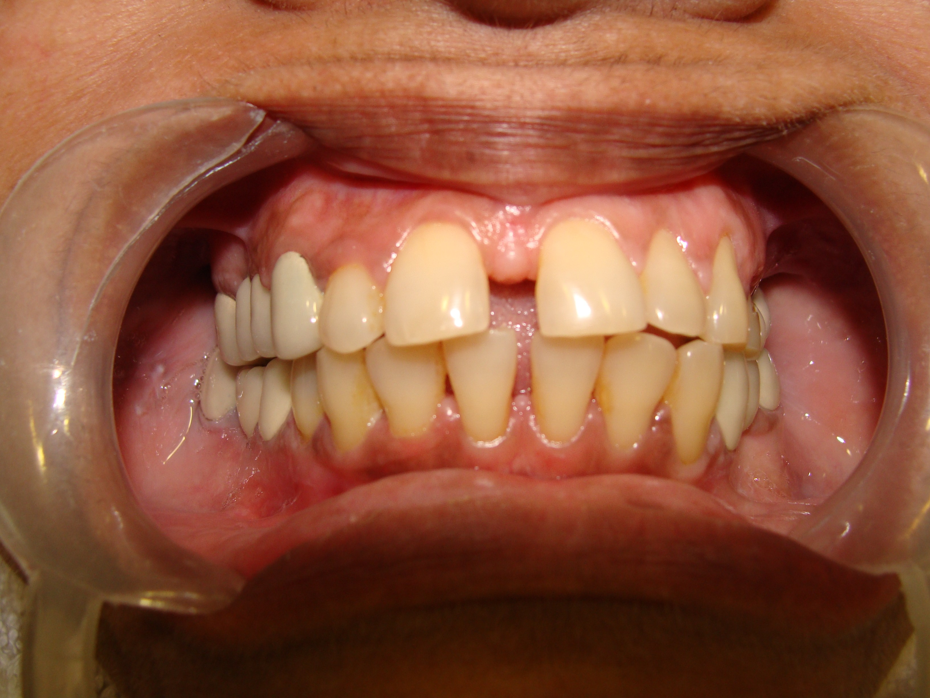 Closing The Gap In Front Teeth-In One Visit - Dr. Ashish Shah