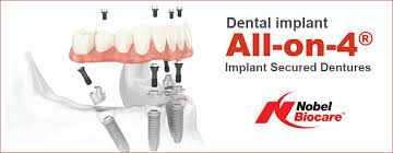 All On 4 Implant Procedure