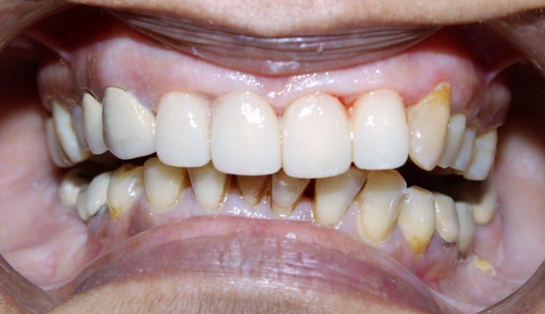 Dr. Ashish Shah, dental clinic near me